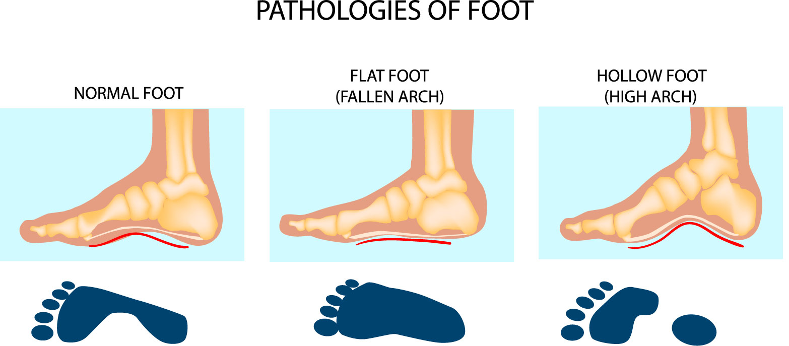 High arched feet, in medical terminology referred as pes cavus, is a condition characterized by an unusually high arch. The foot arch goes from the ball of ...